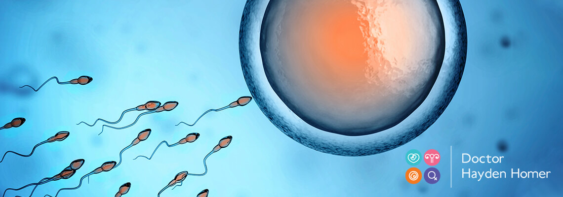 sperm fertilising egg following male fertility treatment in Brisbane